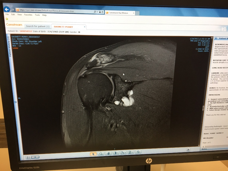 MRI Shoulder-Chasing Fitness