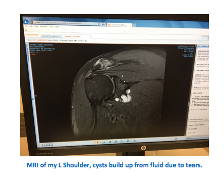 MRI Shoulder Cysts